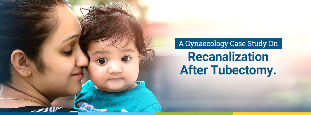 A Gynaecology Case Study On Recanalization After Tubectomy