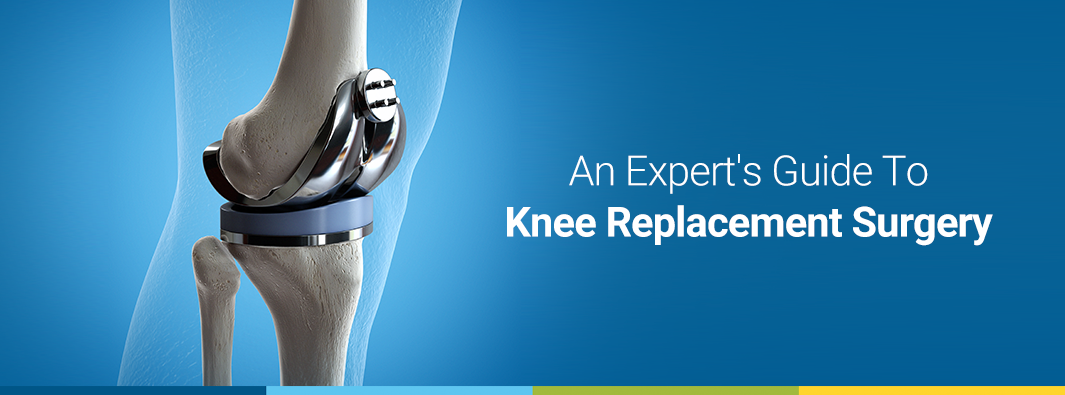 An Expert's Guide To Knee Replacement Surgery
