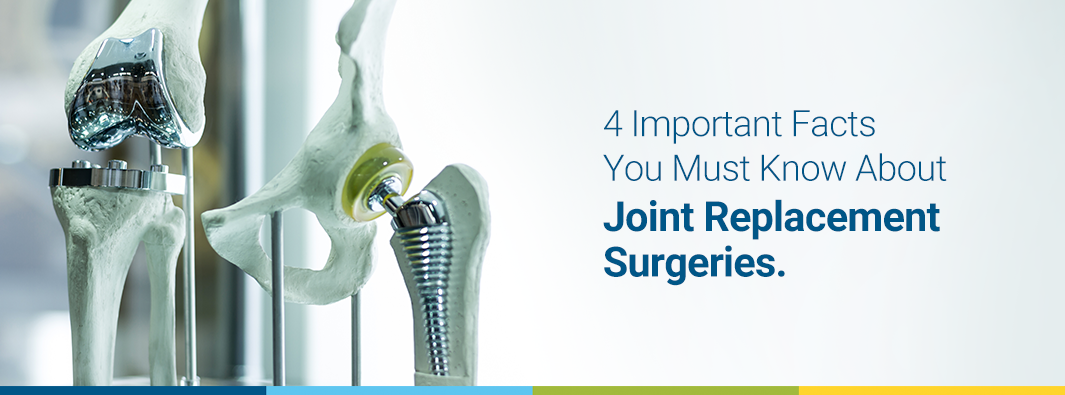 4 Important Facts You Must Know About Joint Replacement Surgeries